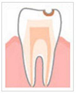 少し進行した虫歯
