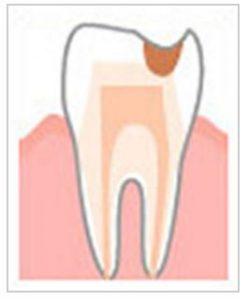 象牙質が溶けた虫歯