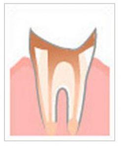根元だけ残った虫歯