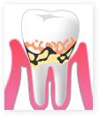 軽度歯周炎の様子