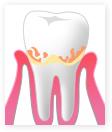 歯肉炎の様子