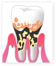 重度歯周炎の様子